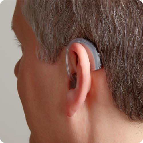 决定助听器价格的因素有哪些?